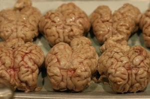 Brains in Moroccan Souk (Used with permission.)